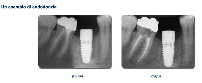 Endodonzia - attività dello studio